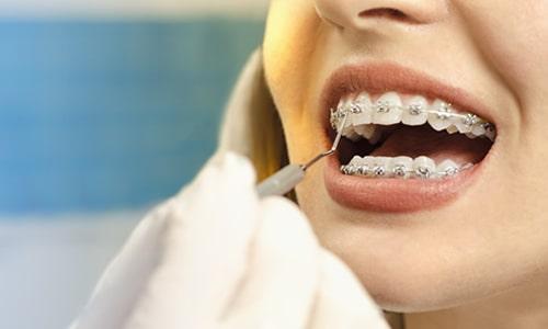 Imagem do curso Especialização em Ortodontia