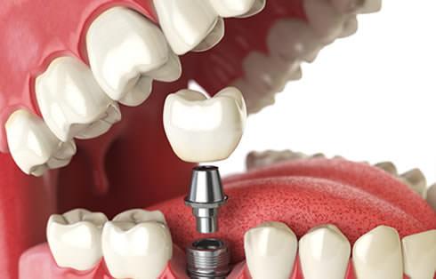 Imagem do curso Implantodontia