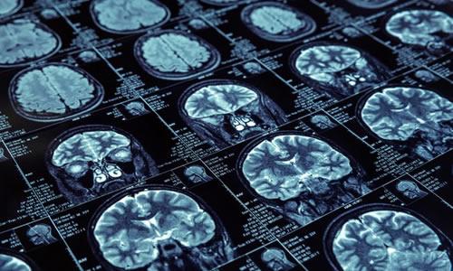Imagem do curso Enfermagem em Neurocirurgia